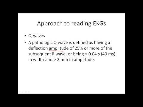 Q wave - Reading EKG video 11