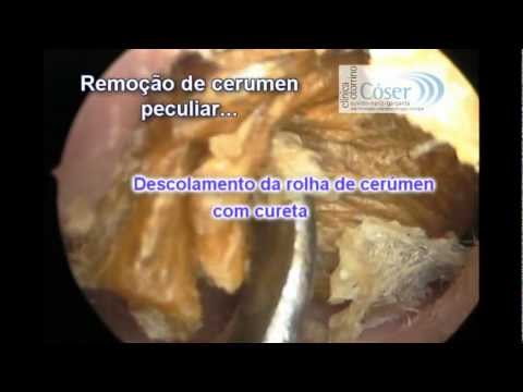 The Biggest Earwax removal by otoendoscopic technique ever??-A Maior cera de ouvido do mundo??