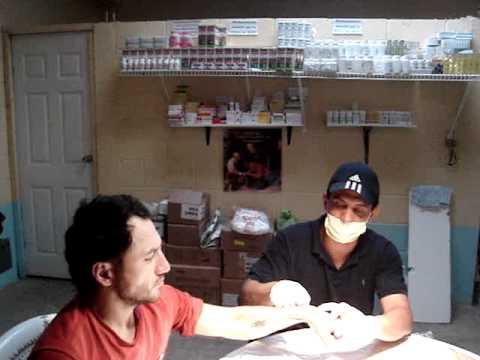 pavoncito fraijanes extraccion de quiste sinovial Edgar Rene Verbena Pacheco