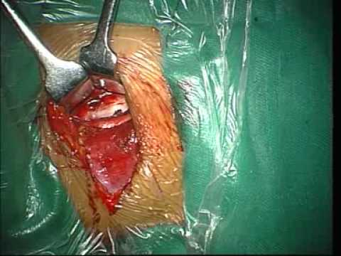 Anterior Cervical Discectomy And Fusion. -nXg9fwYKOTA