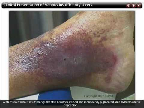 Characteristics of Venous Ulcers