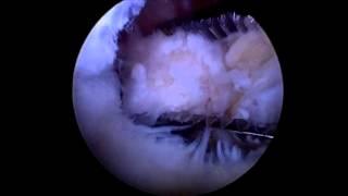Surgery videos library: posterior arthroscopic  subtalar arthrodesis