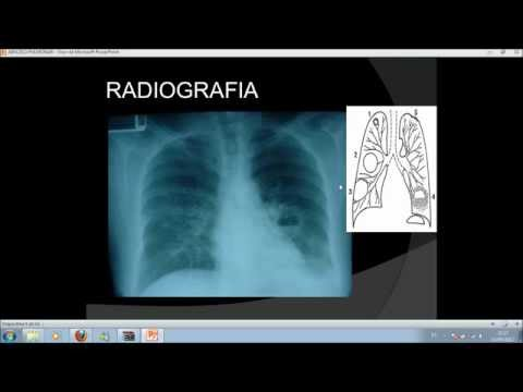 absceso pulmonar , diagnostico radiologico ,tto