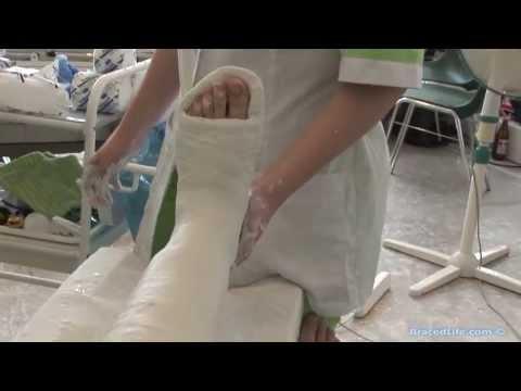 Plaster Long Leg Cast