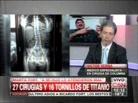 C5N - SOCIEDAD:  FORT 27 CIRUGIAS Y 16 TORNILLOS DE TITANIO (PARTE 1)