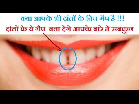 दांतों के गैप का मतलब hindi में /दांतों का गैप आपके बारे में सब बताता है.
