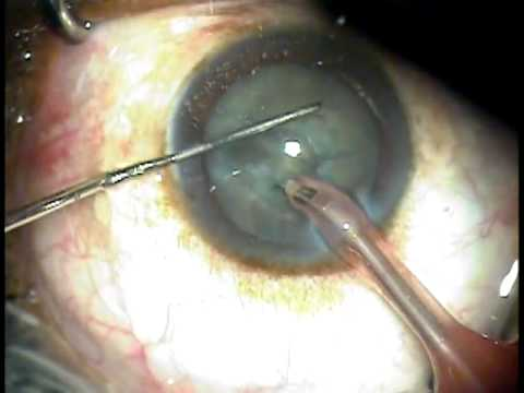 Clear Cornea, Topical, Sutureless, Phacoemulsification Cataract Surgery, simple and quick