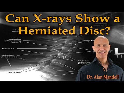 Can X-rays Show a Herniated Disc? - Dr. Alan Mandell, D.C.
