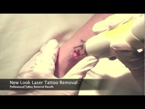 Tattoo Removal Houston at New Look