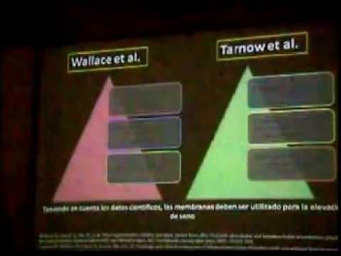 REVISTA DE REVISTAS: TÉCNICAS PARA EL MANEJO DEL SENO MAXILAR. PARTE 10