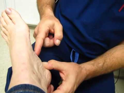 How to wrapping your foot fro Plantar Fasciitis | Dr. Bembynista