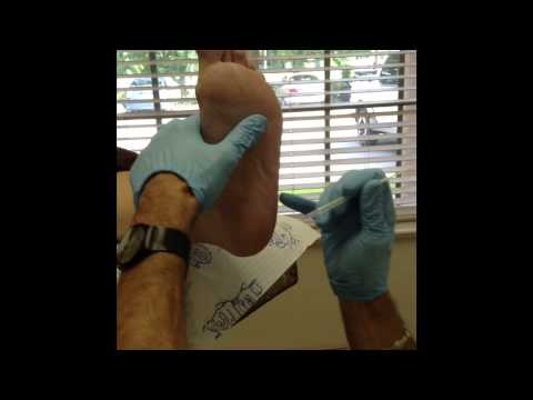 Injection for heel spur plantar fasciitis
