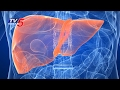Liver Failure Causes, Symptoms and All About Liver Transplantation | Health File | TV5 News