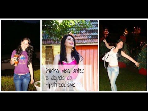 Minha vida antes e depois do Hipotireoidismo
