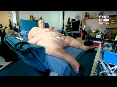 un homme de 394 kg
