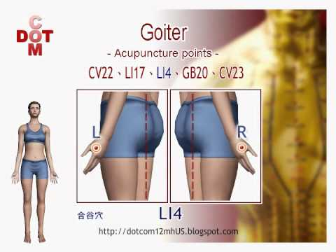 Goiter DIY acupuncture points【12MH】