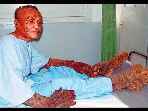 EL HOMBRE ARBOL DE YAKARTA. El caso mas raro de VPH