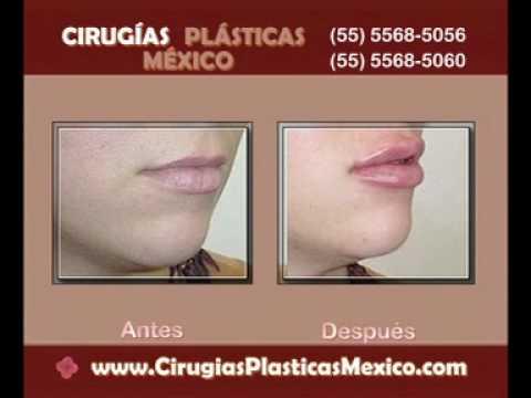 Cirugías Plásticas México - Aumento de Labios - Acido Hialurónico y Botox