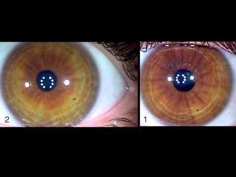 ✿ Iridology ✿ Eye Changes ✿ Before and After