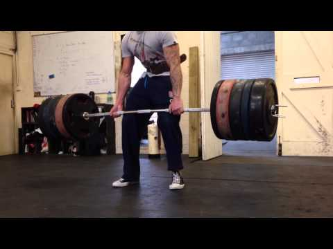 250kg Deadlift with Torn Bicep Tendon