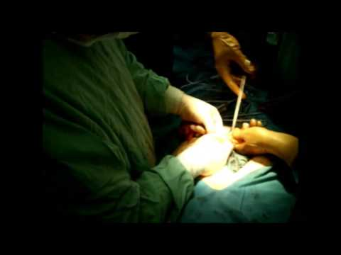Laparotomy for Ca sygmae Amputatio recti