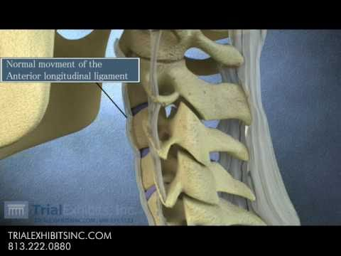 Anterior Subluxation in the Cervical Spine