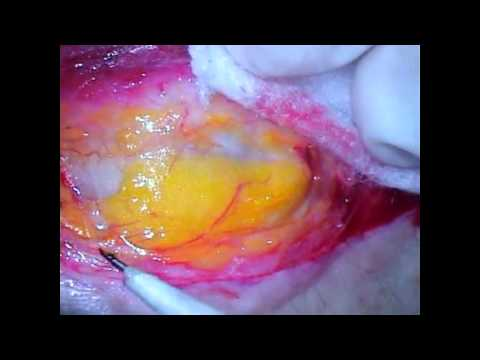 VIDEO 12-3 Blefaroplastia Superior