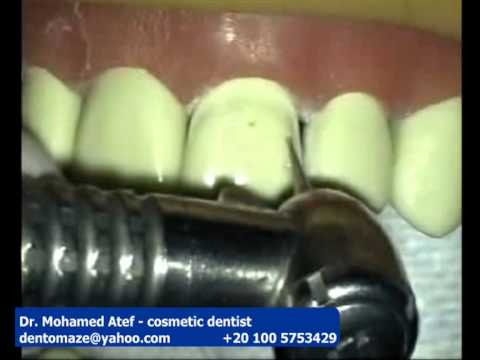 Porcelain Veneer 1/2 Preparation