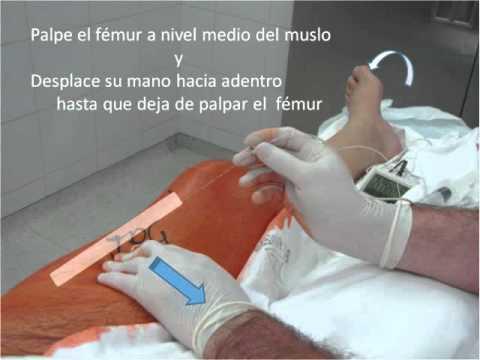 Bloqueo Anterior Medio Femoral del Nervio Ciatico. Dr Alejandro Corujo.wmv