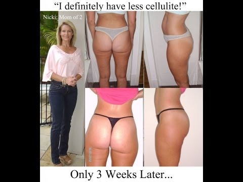 Naked Beauty - Remove Cellulite Naturally - Toning Body