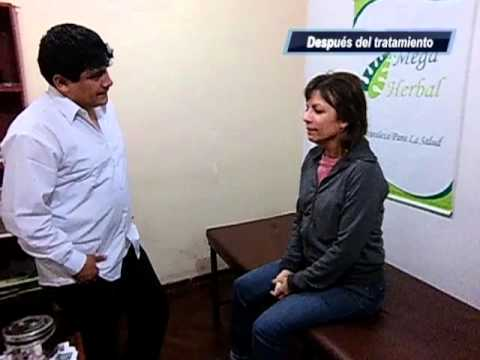 rinitis cronica polipo nasal cura total remedio casero medicina uriel tapia 63