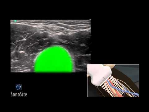 3D How To: Ultrasound Guided Peripheral Inserted Venous Catheter - SonoSite Ultrasound