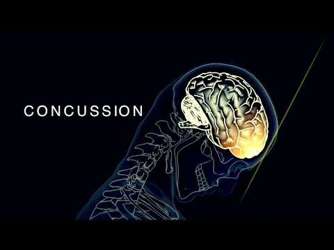 Concussion In Sport - Sport Medicine: Physical Education PE