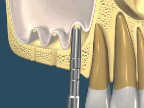 5 -¿Qué sucede cuando pierdo las muelas superiores?. Neumatización del seno maxilar.