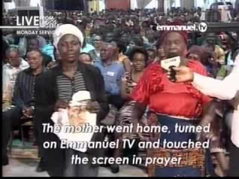 Severe Ulcer of the leg healed by touching Emmanuel.tv -- TB Joshua
