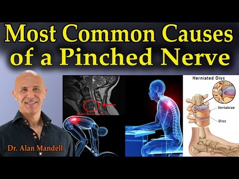 Most Common Causes of a Pinched Nerve - Dr Mandell