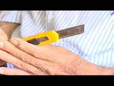 Cansado de esperar por atendimento do SUS, idoso faz própria cirurgia no PR