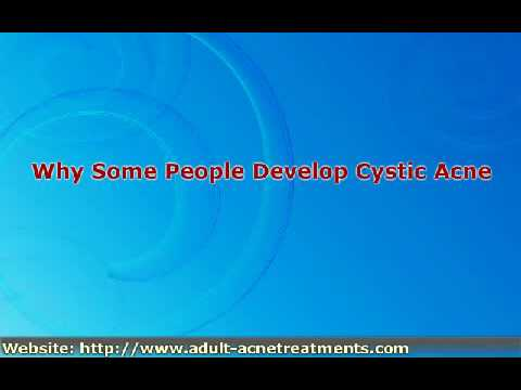 Cystic Acne In Adults - Causes And Treatment