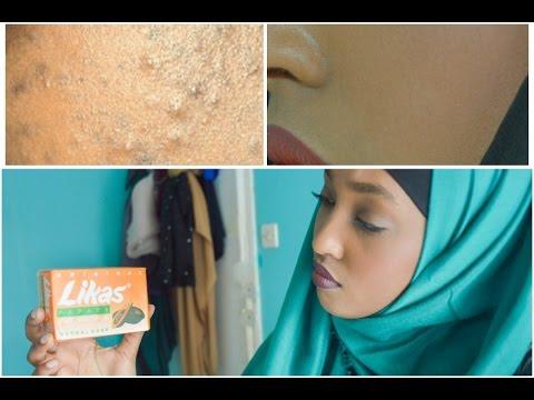 Comme prévenir la pigmentation sur la personne