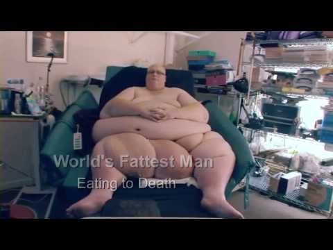 The World's Fattest Man - Fat Doctor