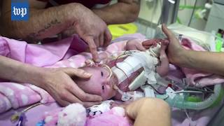How doctors saved a baby born with her heart outside her body - WASHINGTONPOST