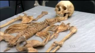 A Medieval Skeleton Holds Clues to Leprosy's Spread - VOAVIDEO