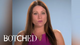 Botched | Christina's Nose Looks Like a Hockey Stick | E! - EENTERTAINMENT