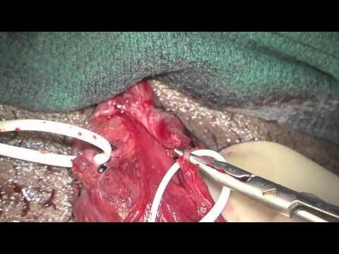 Microsurgical Subinguinal Varicocelectomy with Testicular Delivery  Nourparvar