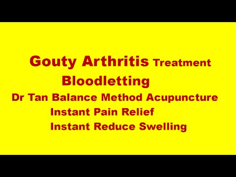 Gouty arthritis treatment: Dr Tan Balance Method Acupuncture & Bloodletting to treat Gouty arthritis