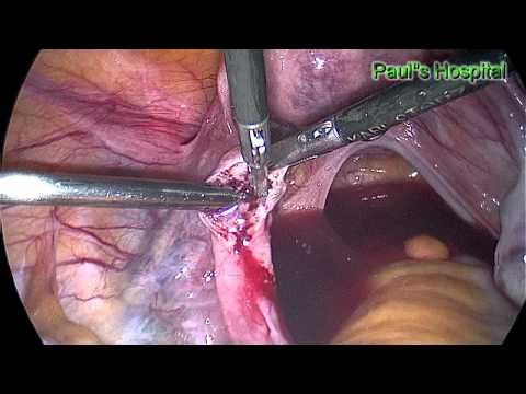 Laparoscopic Salpingostomy for Ectopic Pregnancy - Pauls Hospital