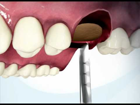 iRaise Sinus Lift Implant animation