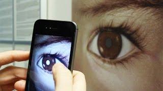 الهواتف الذكية يمكنها تشخيص سرطان العين (بالفيديو)