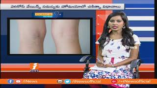 Treatment For Varicose veins Problems With Homeocare International |Doctors Live Show| iNews - INEWS