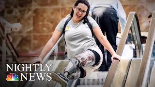Woman Inspired To Become A Nurse After Losing Both Legs | NBC Nightly News - NBCNEWS